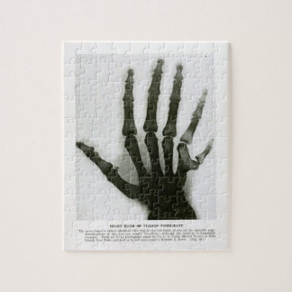 Xray of Six Fingered Hand Puzzle