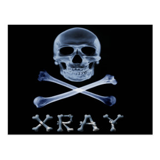 XRAY PIRATE Flag RADIOLOGY JOLLY ROGER Postcard