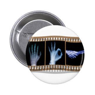 XRAY SIGN LANGUAGE FILM - HAND OK HANDSHAKE BUTTONS