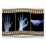 XRAY SIGN LANGUAGE FILM - HAND OK HANDSHAKE GREETING CARD