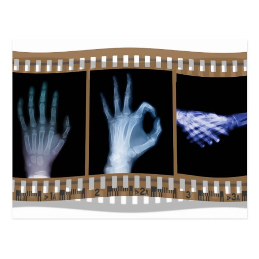 XRAY SIGN LANGUAGE FILM - HAND OK HANDSHAKE POSTCARD