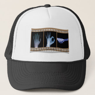 XRAY SIGN LANGUAGE FILM - HAND OK HANDSHAKE TRUCKER HAT