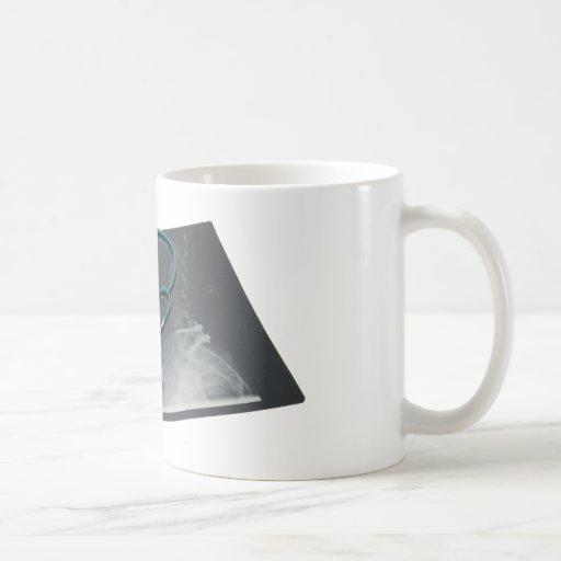 XRayConsult061209 Classic White Coffee Mug