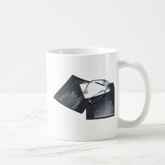 XrayMedicalResearch061209 Coffee Mugs