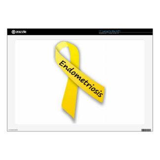Yellow Ribbon for Endometriosis Skin For Laptop