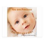 You are Precious ! Post Cards