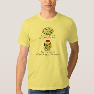 Your brain in Med School Tee Shirts