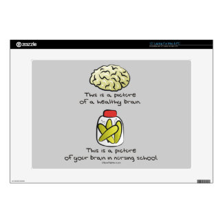 "Your Brain in Nursing School 15"" Laptop Decals"