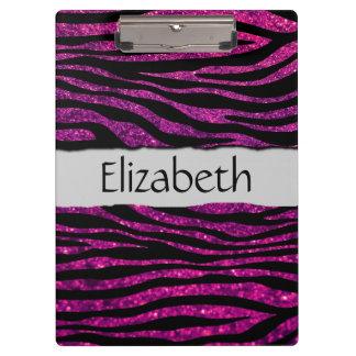 Your Name - Zebra Print, Glitter, Stripes - Pink Clipboard