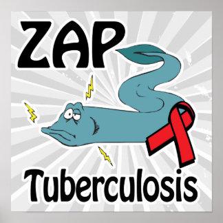 ZAP Tuberculosis Print