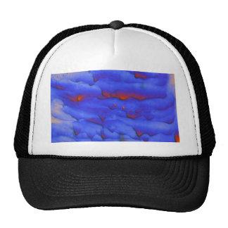 Zinc acetate under the microscope trucker hat